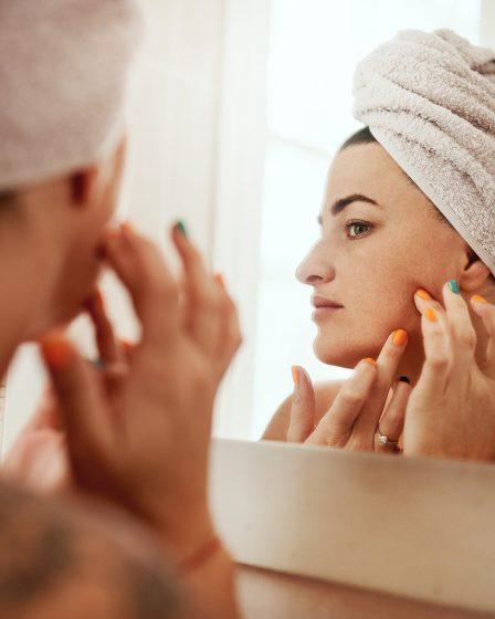 Tudo o que você precisa saber para prevenir e cuidar da acne